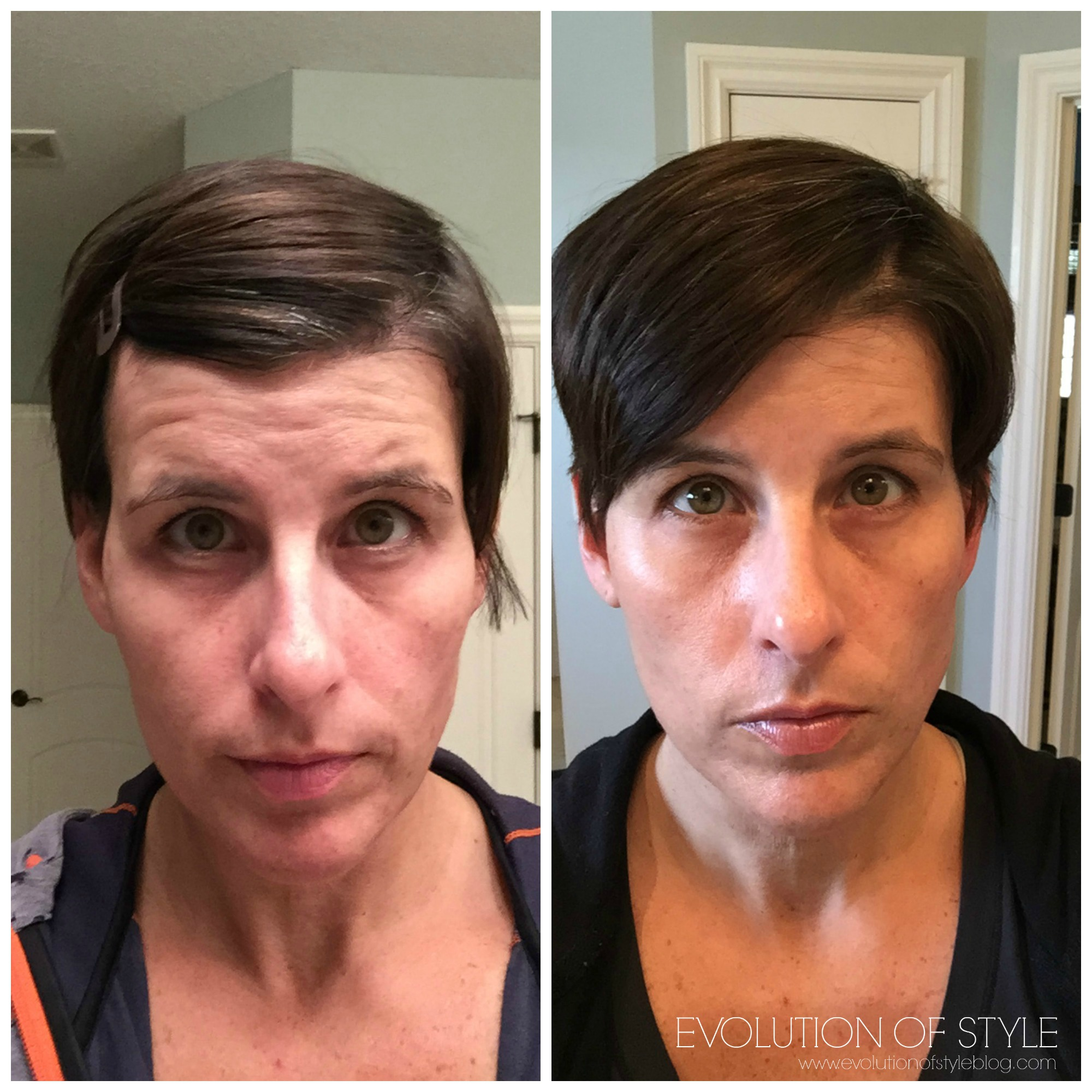 An Honest Review Of Rodan Fields Skin Care Evolution Of